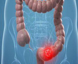 कोलोन कैंसर से जुड़ी अहम जानकारी साइंटिस्टों को मिली